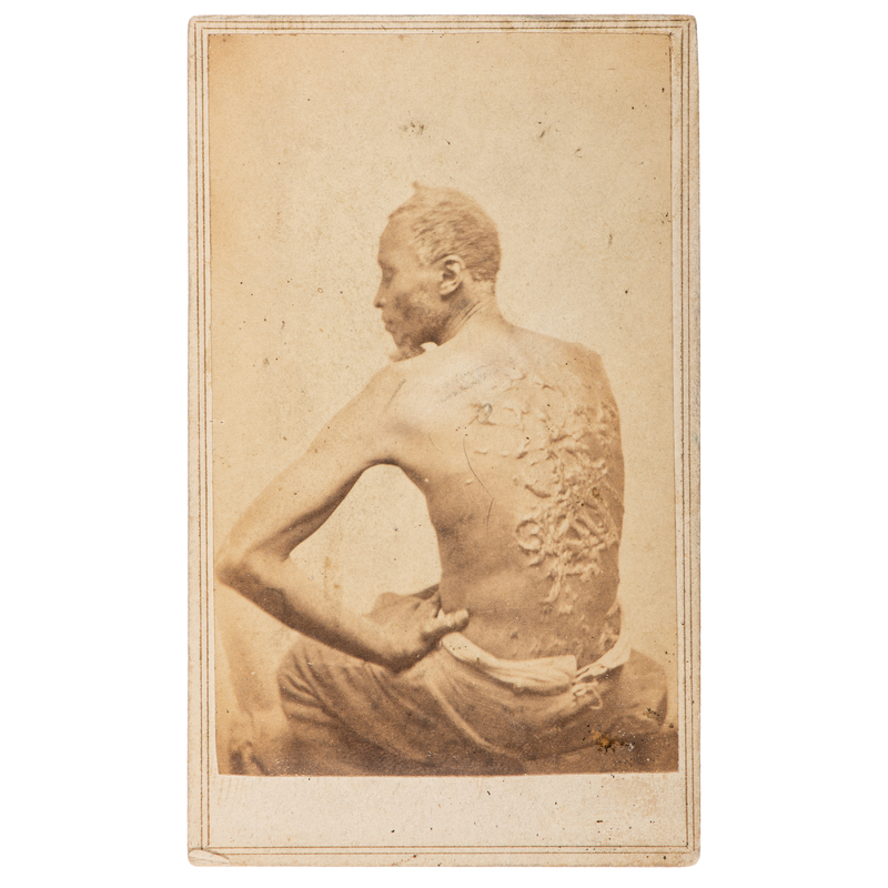 "CDV of Escaped Enslaved African American ""Gordon"" Displaying his Scars"