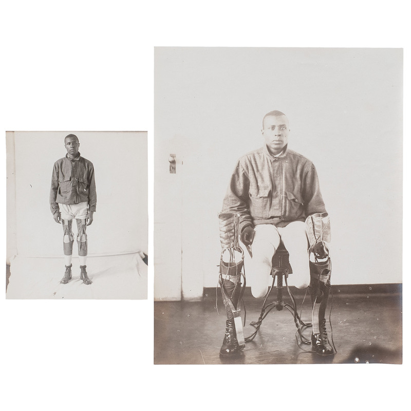 WWI African American Veteran Amputee with Prosthetic Legs, circa 1918